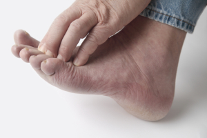 Peripheral Neuropathy Slider Image