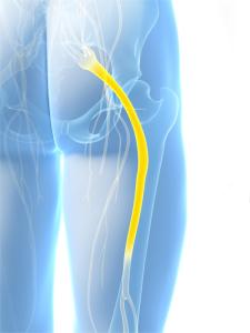 3d rendered illustration of the sciatic nerve